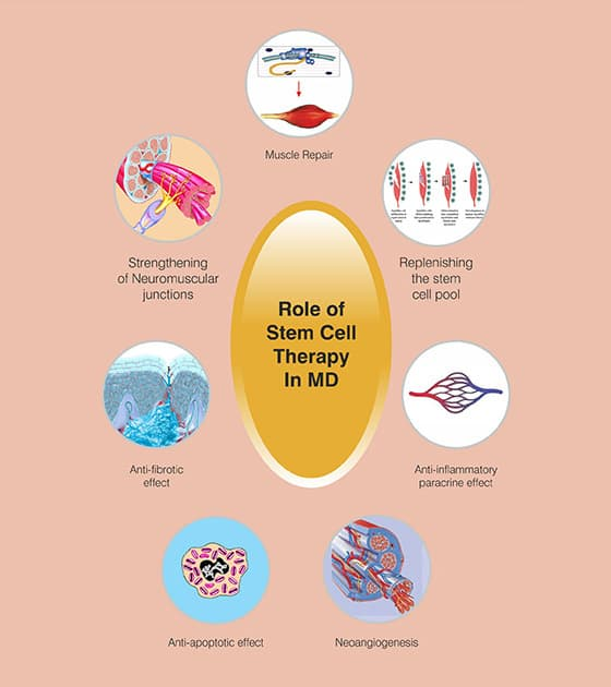 Stem Cell Treatment For Muscular Dystrophy in Mumbai, India